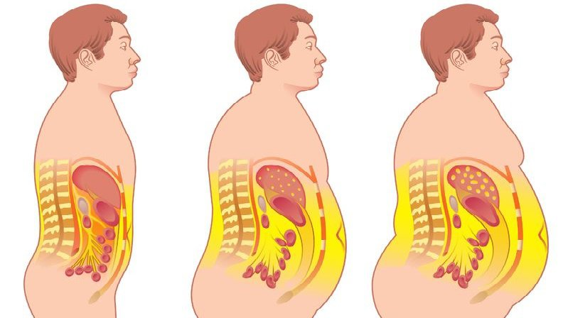 Grasa-abdominal1